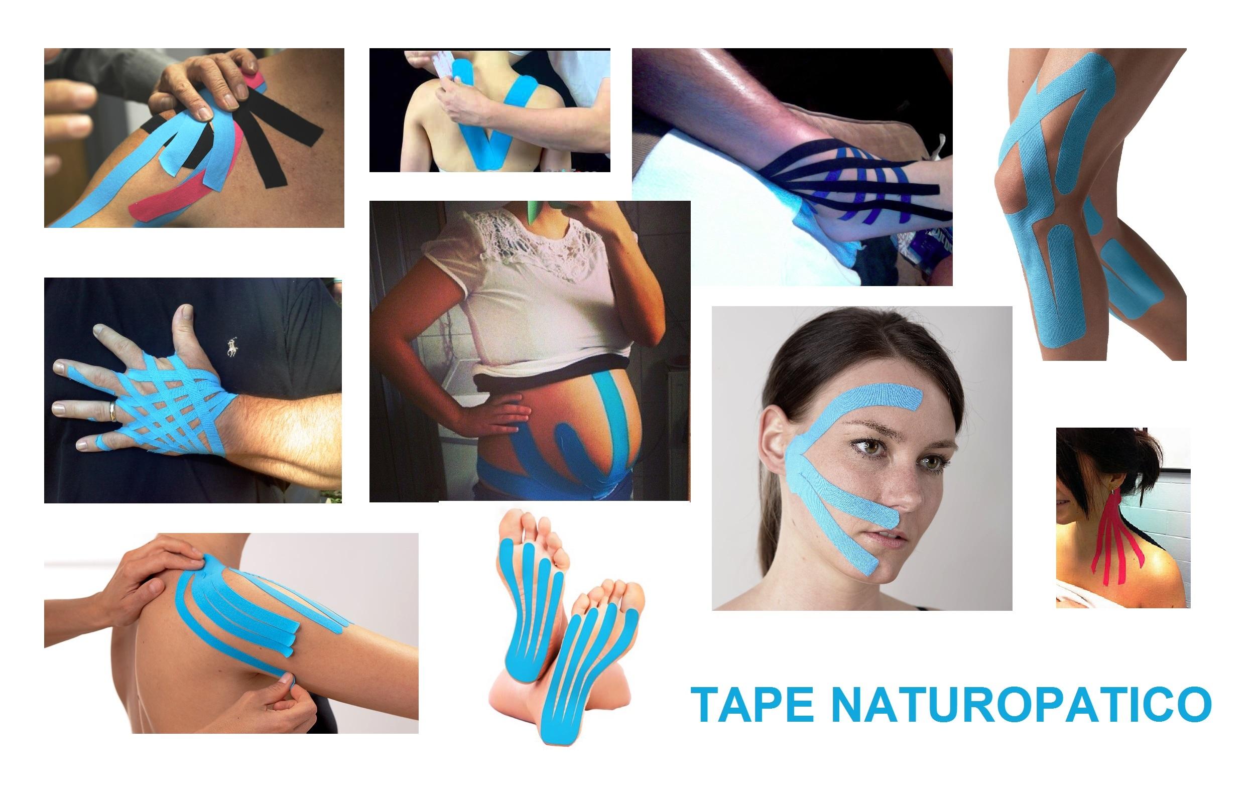 tape-naturopatico-en-la-escuela-internacional-naturopatia