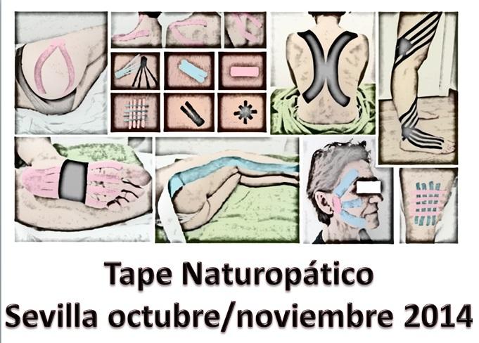 SEVILLA: Tape Naturopático