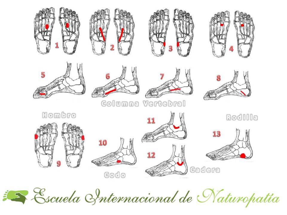 artritis con reflexologia
