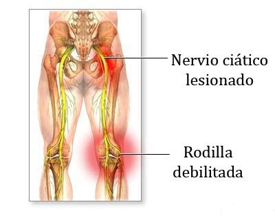 ¿Padeces de dolor en el nervio ciático?