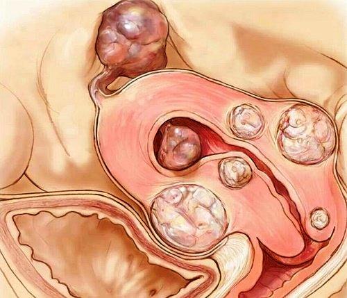 Testimonios de Salud…mioma uterino