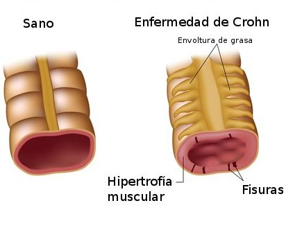 Testimonios de Salud…Enfermedad de Crohn